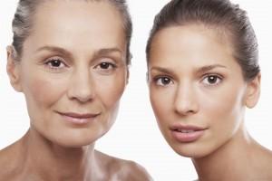 SMAS lift, teljes arcplasztika - dr. Bulyovszky István, PERFECT YOU Plasztikai Sebészet Budapest