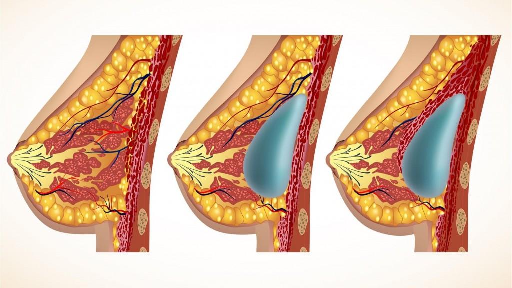 Mellnagyobbítás szilikon implantátum helyei - dr. Bulyovszky István, PERFECT YOU Plasztikai Sebészet Budapest