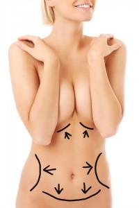 Mellnagyobbítás saját zsírral - dr. Bulyovszky István, PERFECT YOU Plasztikai Sebészet Budapest